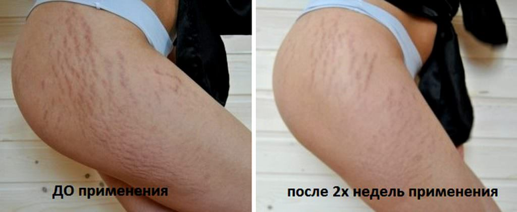 Фото до и после применения бадяги