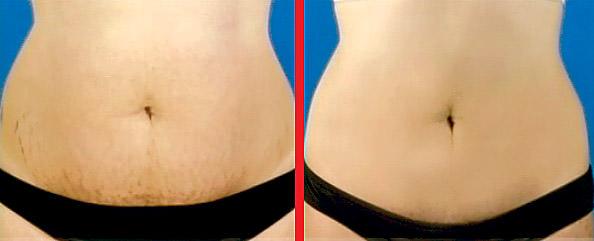 Растяжки до и после