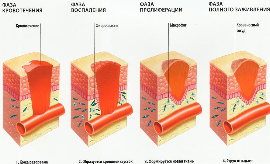 Процесс заживления рубцов после операции