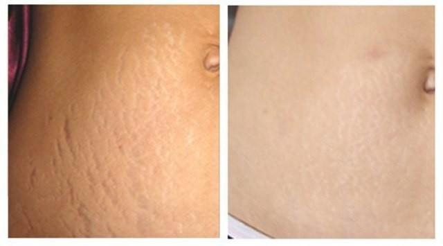 Фото до и после применения крема