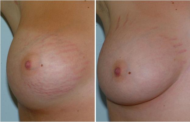 Внешний вид груди после лазерной коррекции