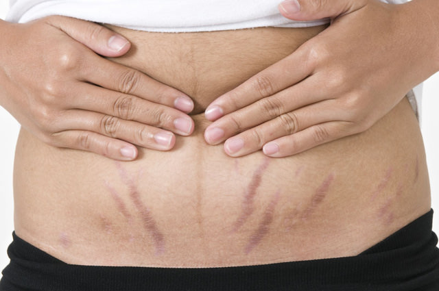 Избавиться от растяжек после родов