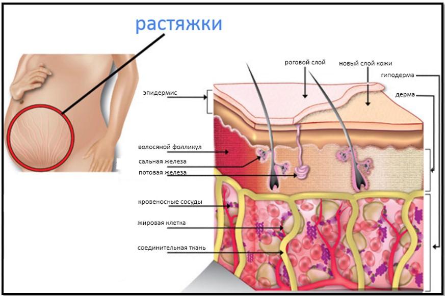 Строение кожи и растяжки
