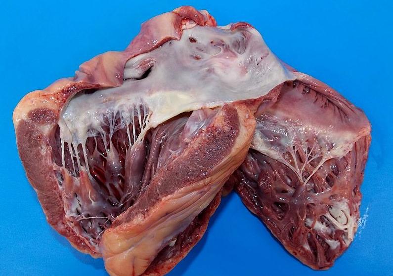 рубец на сердце после инфаркта на экг