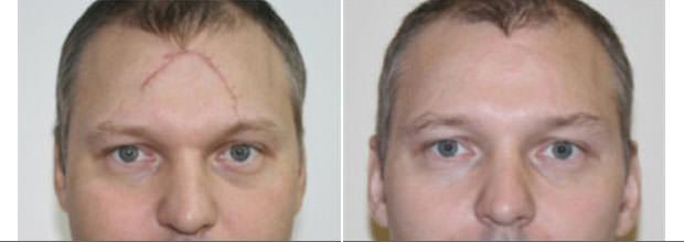 Результат после процедуры шлифовки рубцов