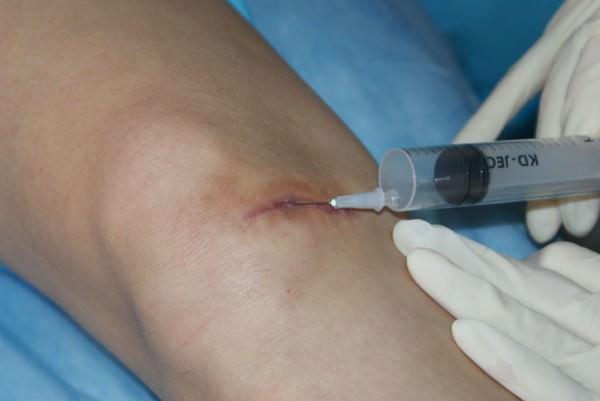 Удаление шрамов инъекциями