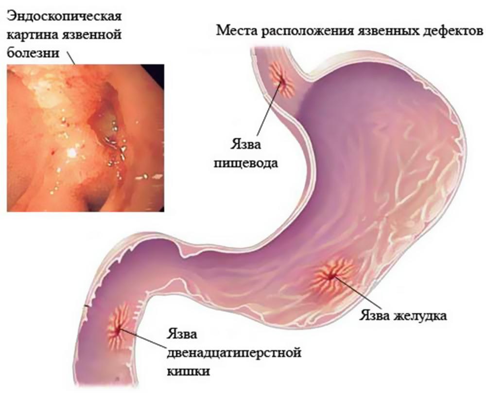 Шрамы желудочно-кишечного тракта
