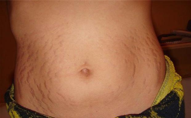 Как убрать растяжки после родов на животе и груди – методы
