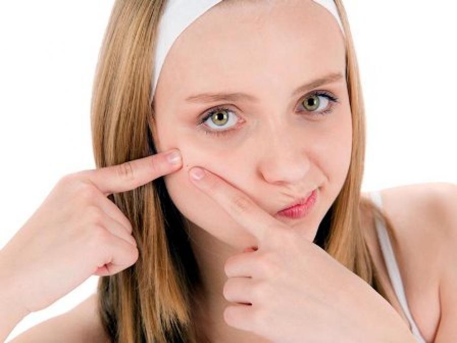 Как убрать следы от прыщей на лице – красные пятна, шрамы и рубцы