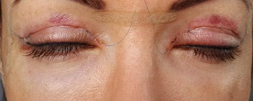Глаза после блефопластики