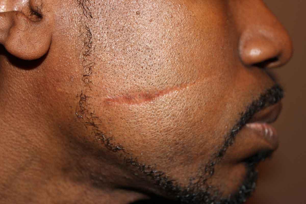 Рассечение брови: лечение в домашних условиях, первая помощь — что делать