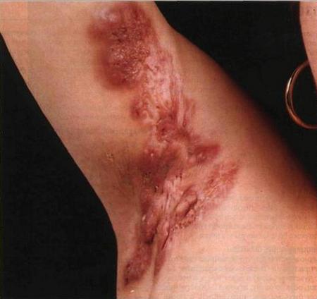Рубец на матке после кесарева (17 фото): норма толщины и несостоятельность после кесарева сечения, келоидный рубец и проведение УЗИ