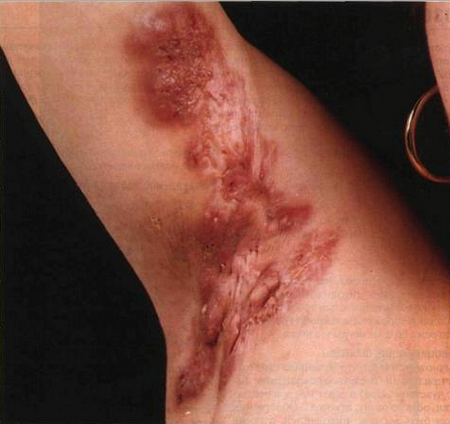 Коллоидный шрам