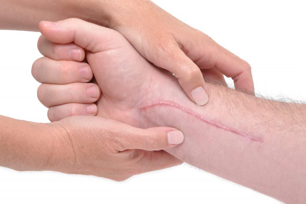 Способы устранения шрамов