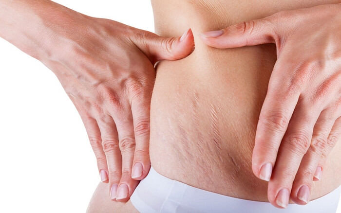 Растяжки на животе после родов и беременности: фото