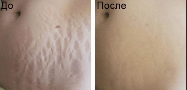 Результат лечения растяжек скрабом