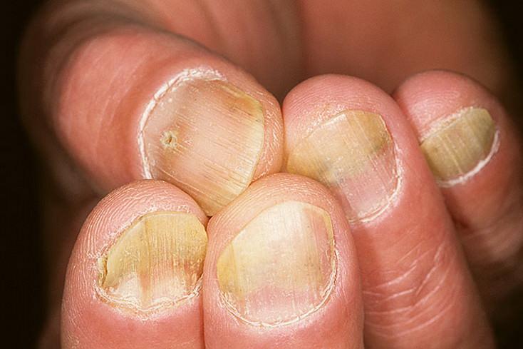 Симптомы болезни на ногтях рук