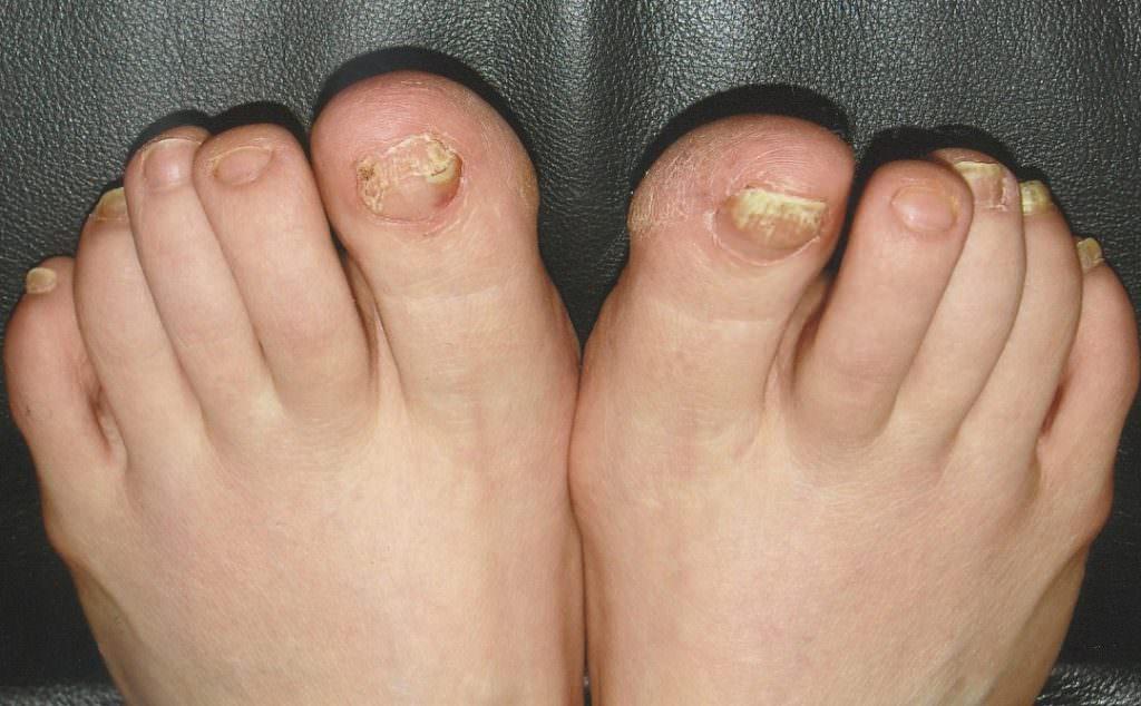Симптомы болезни на ногах