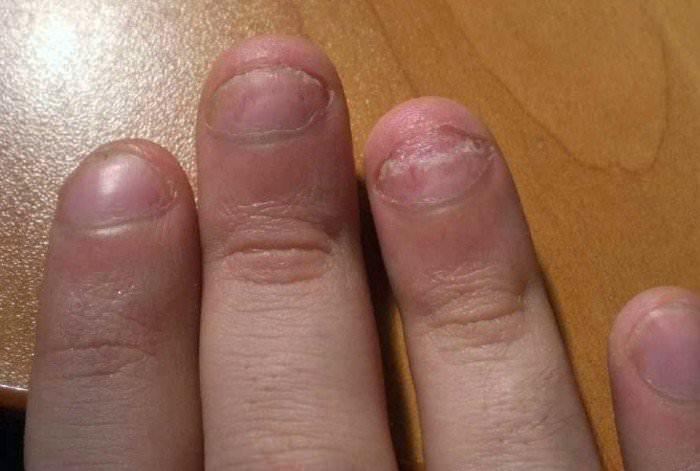 Симптомы на ногтях
