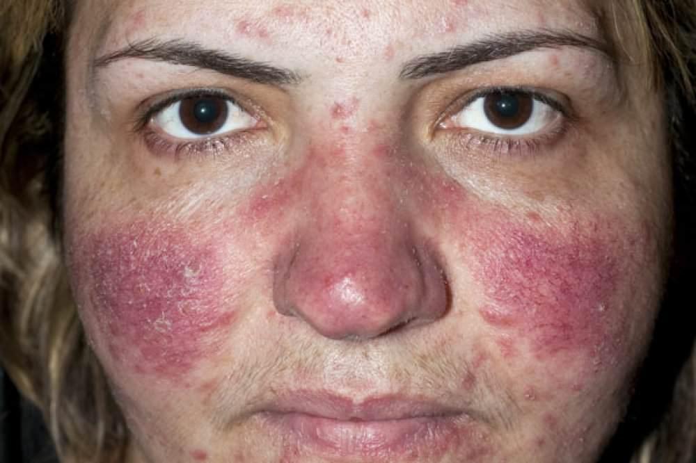 Первые признаки псориаза у женщин и мужчин (фото)