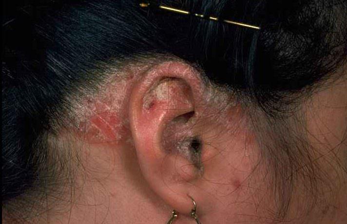 Фото женщины с заболеванием