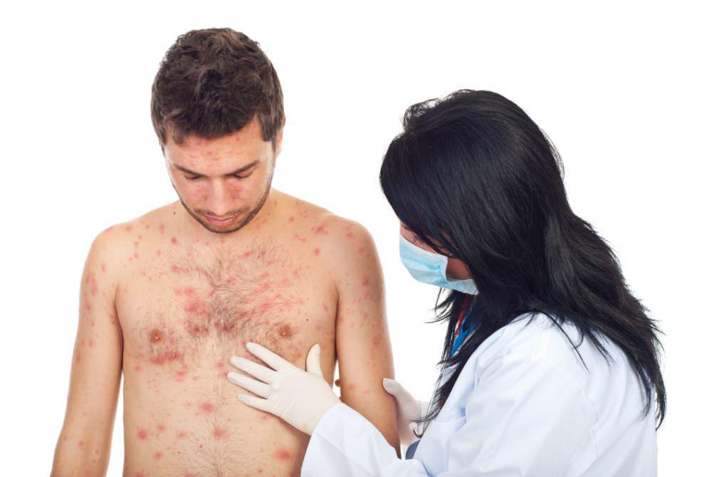 Каплевидный псориаз - симптомы, причины, лечение